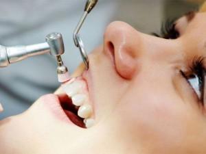 polirovka-zubov-300x225.jpg