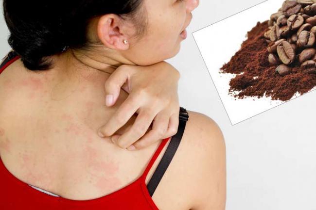 allergiya-2.jpg