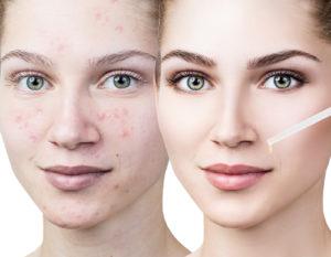 bigstock-Cosmetics-Oil-Applying-On-Face-234733381-300x233.jpg