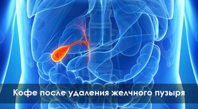 kofe-posle-udaleniya-zhelchnogo-puzyirya.jpg