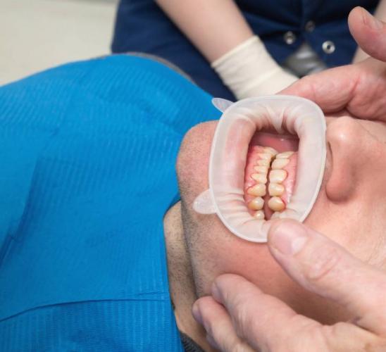 depositphotos_143301203-stock-photo-close-up-of-dental-fluorosis.jpg